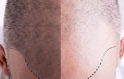 Implants capillaires