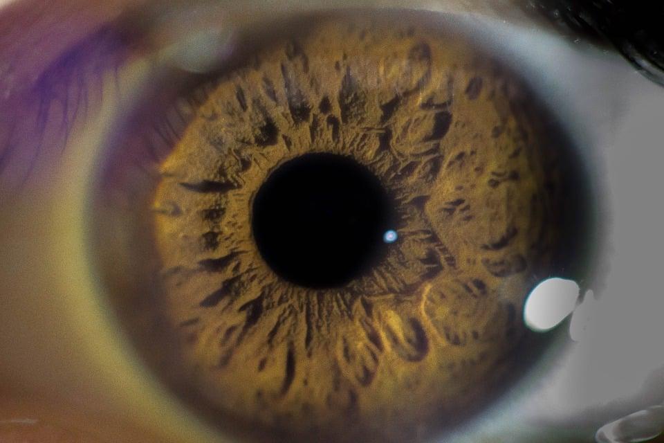 La santé oculaire