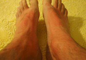 irritations pied