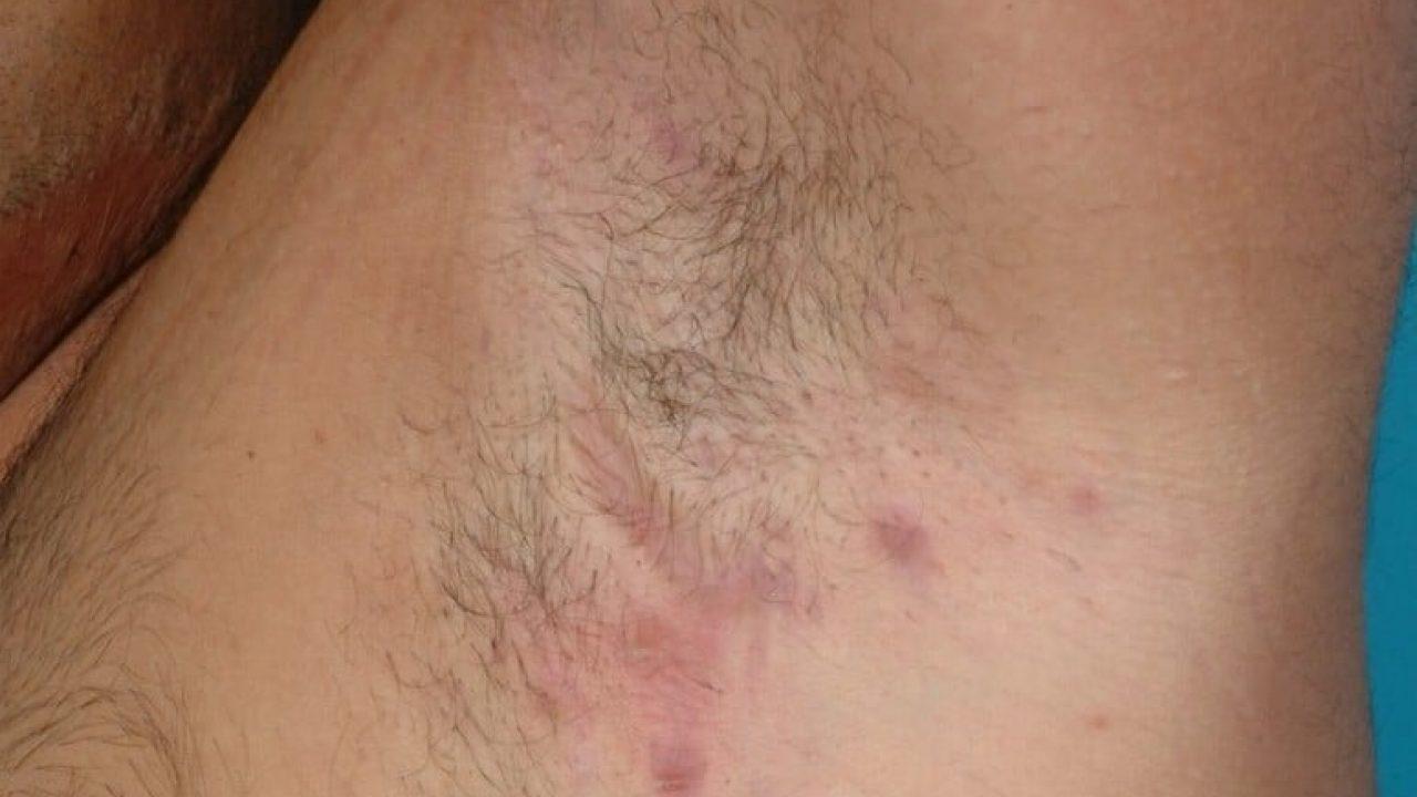 Maladie de Verneuil : les symptômes, les complications et le ...
