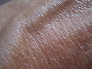 boule peau